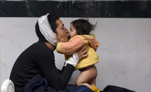 Nepalese resident Suresh Parihar plays with his 8-month-old daughter Sandhaya as he is treated for injuries sustained in an earthquake
